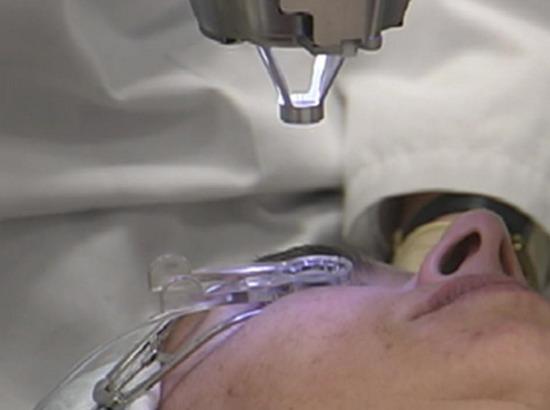 视频:压平锥镜与眼球吸力环接触瞬间 视频:显微镜下所见的效果,压平