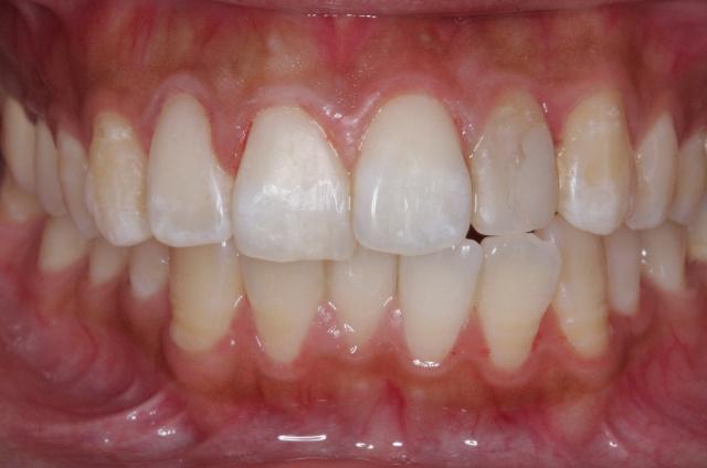 3mz350纳米树脂贴面前牙美牙0/?